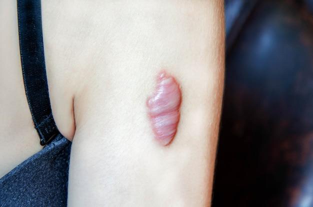 Close-up van keloid litteken op de schouder van jonge vrouw. ruw litteken.