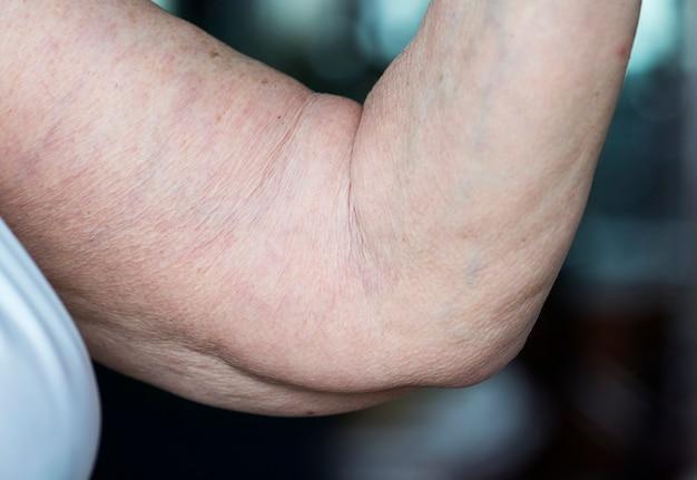 Close-up van losse bejaarde arm