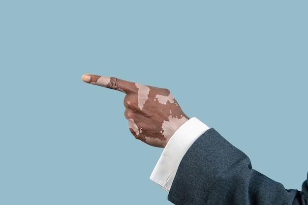 Close up van mannelijke handen met vitiligo pigmenten geïsoleerd op blauwe achtergrond. speciale huid