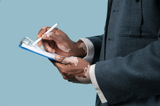 Close-up van mannelijke handen met vitiligo pigmenten geïsoleerd op blauwe achtergrond.
