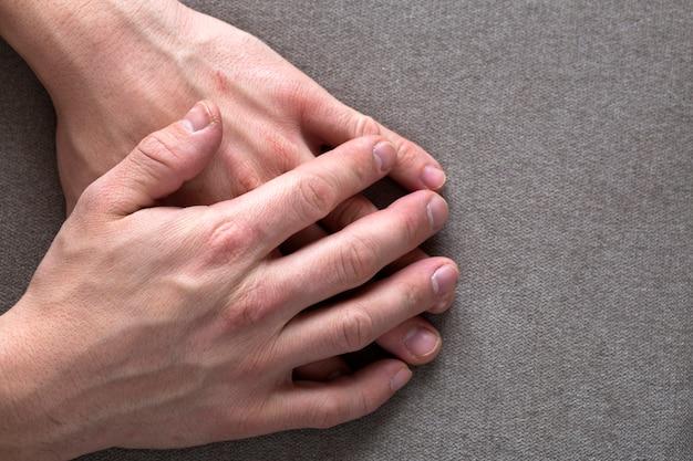 Close-up van mannelijke mannelijke jonge werknemershanden met ruwe huid en het korte vingernagels rusten. bovenaanzicht. handarbeid en handen zorgconcept.