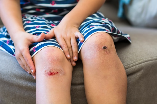Close-up van meisje dat haar gekneusde gewonde beschadigde knie met haar handen houdt