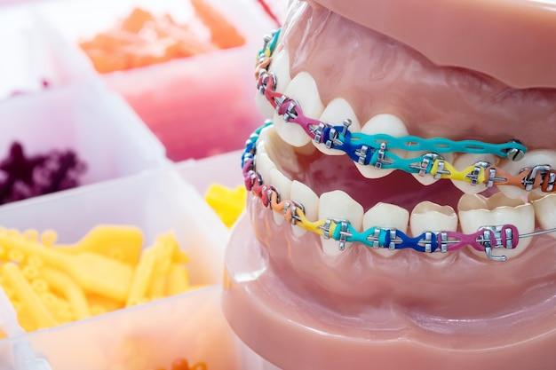 Close-up van orthodontisch model