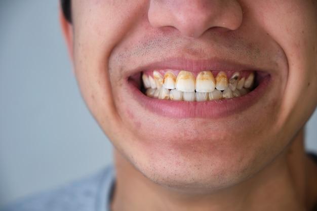 Close-up van persoon die lacht