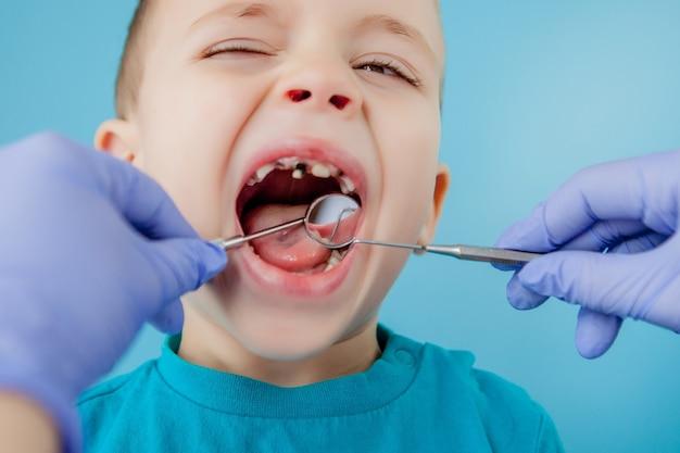 Close-up van tandarts die de tanden van het kind behandelt
