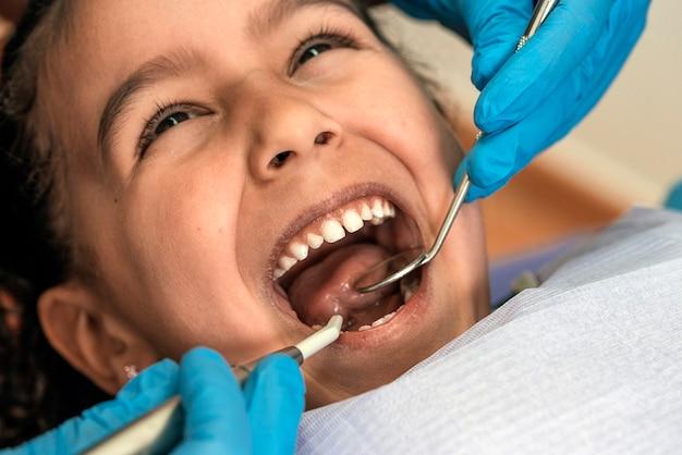 Close up van tandarts tijdens een tandheelkundige ingreep met een patiënt. tandartsconcept
