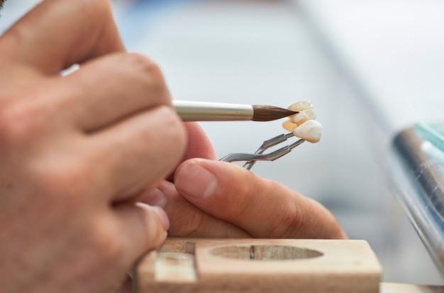 Close-up van tandtechnicus die ceramisch zet aan tandimplants in zijn laboratorium.