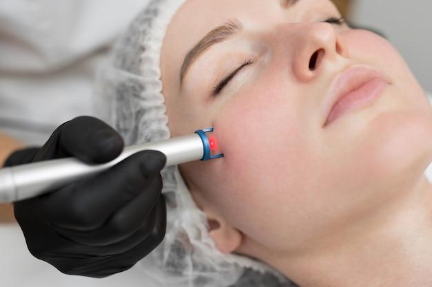 Close-up verwijdering van bloedvaten op het gezicht van een diodelaser in een cosmetische kliniek.