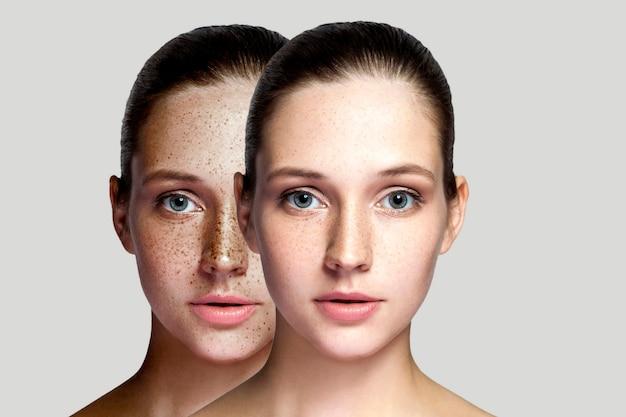 Close-up voor en na portret van mooie brunette vrouw na laserbehandeling die sproeten op het gezicht verwijdert en naar de camera kijkt. make-up of cosmetologie. indoor studio opname, geïsoleerd op een grijze achtergrond.
