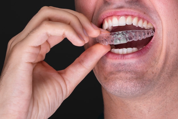 Close-upmannetje die tandenbescherming gebruiken