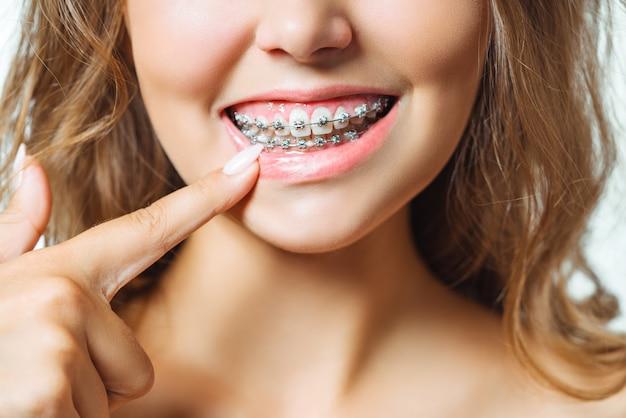 Close-upportret van jonge vrolijke readheadvrouw bij orthodontist