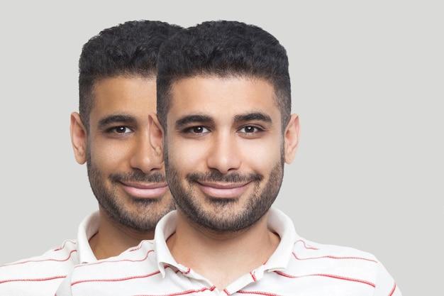 Closeup portret van jonge brunette bebaarde man met verschillende gezichtshuid toon, donkerder en lichter, kijken en glimlachen. voor en na, zonnebad, behandeling en solarium concept. binnen studio opname.