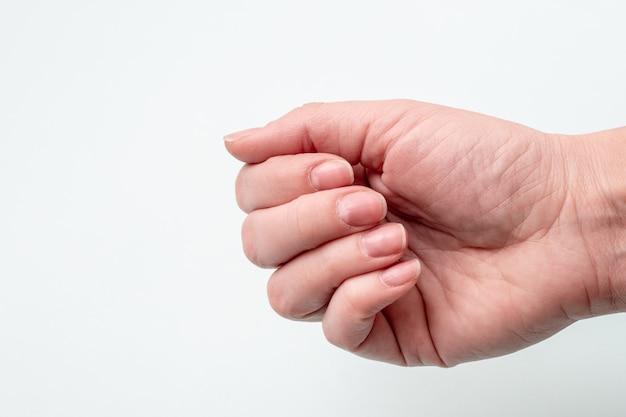 Concept voor natuurlijke nagels, ruwe nagels. close-up van kaukasische vrouwelijke hand met natuurlijke ongepolijste nagels, overwoekerde cuticula