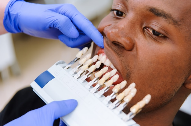 Controleer en selecteer de kleur van de tanden. tandarts maakt het behandelingsproces in tandheelkundige kliniek.