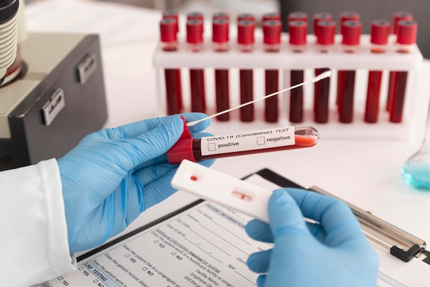 Coronavirus testassortiment in lab