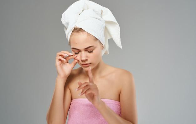 Cosmetologie dermatologie vrouw met een handdoek op haar hoofd acne op haar gezicht