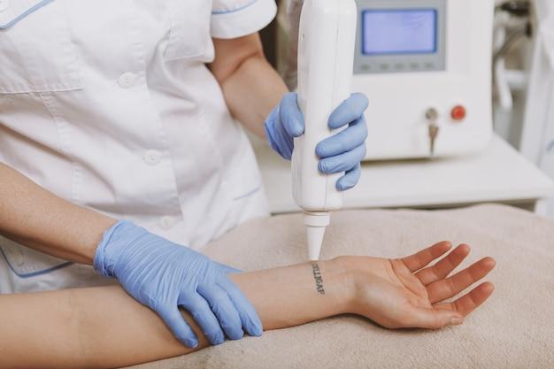 Cosmetologist die tattoo van een cliënt verwijdert die laser gebruikt