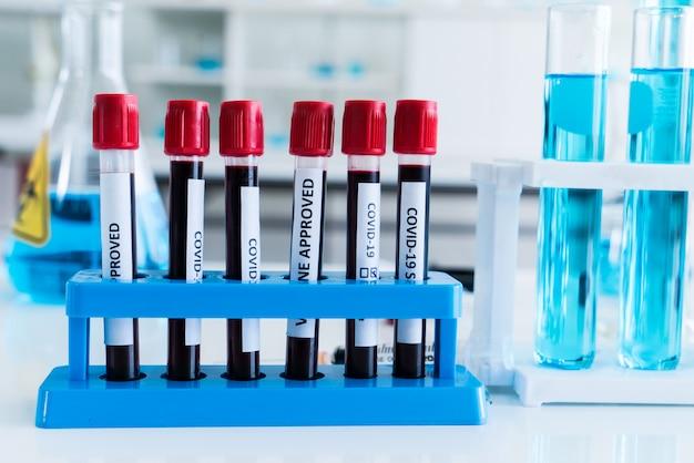 Covid-19 bloedtest in glazen buis bij medisch laboratorium w.