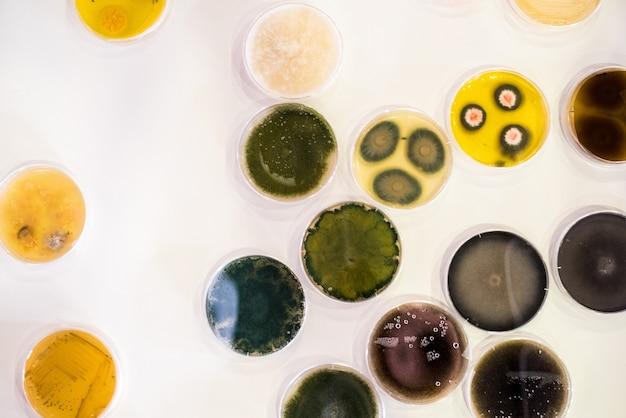 Cultuur van bacteriën in petrischaal