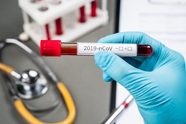 De arts houdt een reageerbuis met bloed vast. testen op infectie met een nieuw coronovirus. het nieuwe virus van china genaamd 2019-ncov