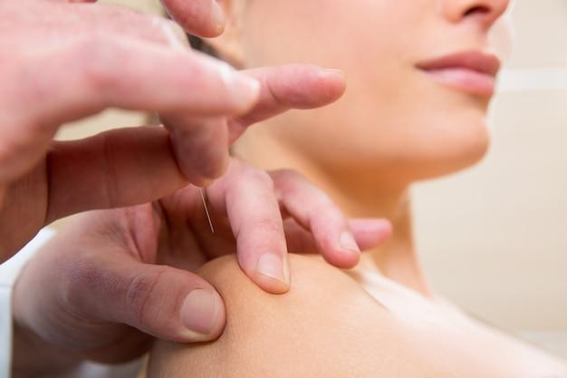 De arts overhandigt acupunctuurnaald die op vrouw prikt