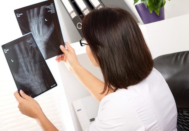 De arts van de vrouw bekijkt röntgenstraal van gebroken hand