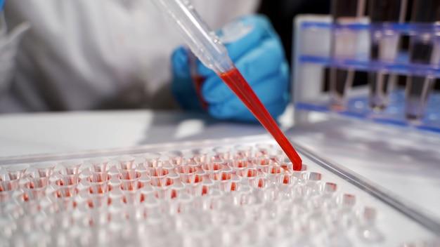 De arts voert onderzoek uit en bereidt een bloedmonster voor voor onderzoek op een microscoop
