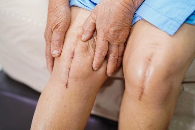 De aziatische hogere of bejaarde oude vrouw van de damevrouw toont haar littekens