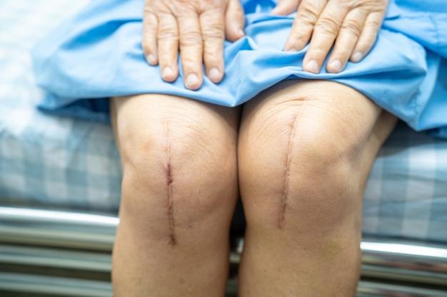De aziatische hogere vrouwenpatiënt toont haar littekens chirurgische totale vervanging van het kniegewricht.