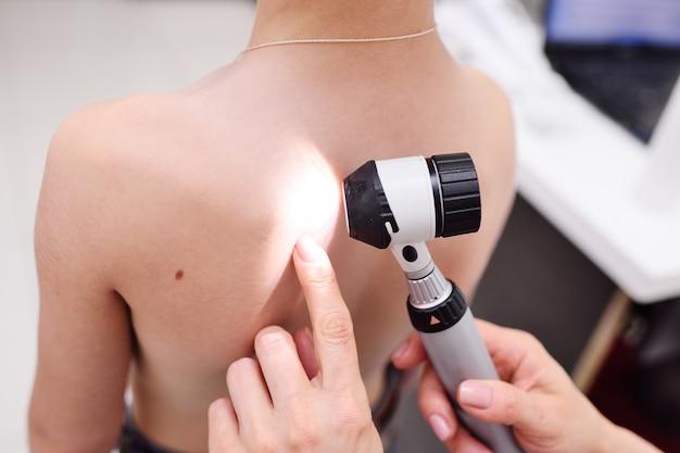 De dermatoloog onderzoekt de moedervlekken of acne van de patiënt met een dermatoscoop