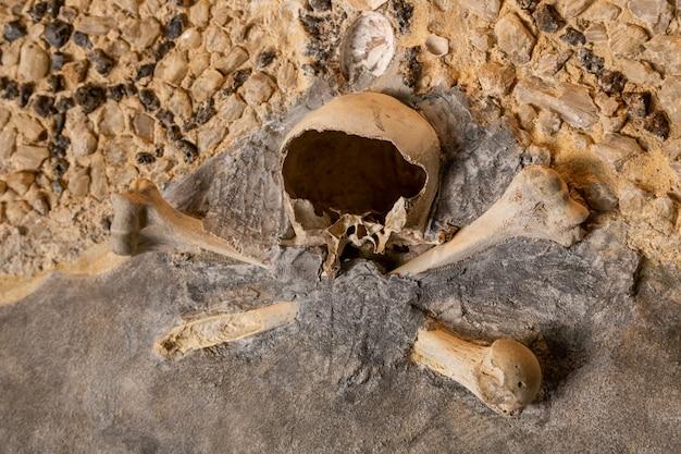 De gebroken schedel en botten van een mens aan de muur
