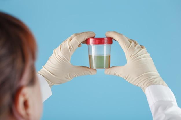 De gehandschoende hand van de dokter houdt een doorzichtige container met een urinetest vast.