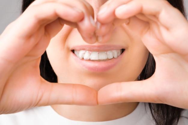 De gelukkige vrouw met een perfecte glimlach in transparante aligners op haar tanden toont hart met handen
