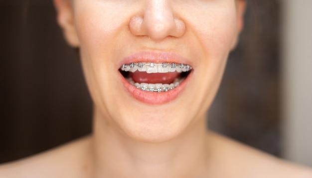 De glimlach van een jong en mooi meisje met een beugel op haar witte tanden. rechtzetten van scheve tanden met behulp van een beugelsysteem. malocclusie. tandheelkunde. gladde tanden en een mooie lach