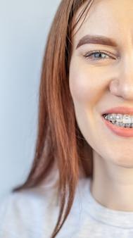 De glimlach van een jong meisje met beugels op haar witte tanden. tanden rechttrekken.