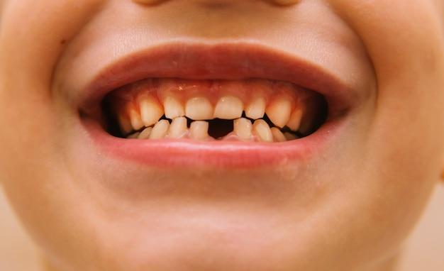 De glimlach van een kind dat een melktand heeft verloren. zorg voor kindertanden. mondhygiëne.