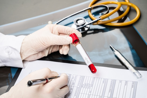 De hand van de arts die bloedmonster houdt en nota's maakt die patiëntengegevens op voorschrift schrijven