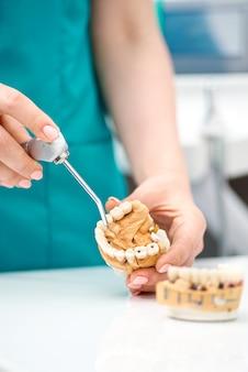 De hand van de tandarts houdt een kunstkaakmodel vast en toont de tanden van de patiënt