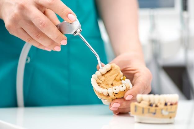 De hand van de tandarts houdt een model van een kunstmatige kaak vast en toont de tanden van de patiënt. behandeling in een tandheelkundige kliniek. detailopname. concept van stamotologie