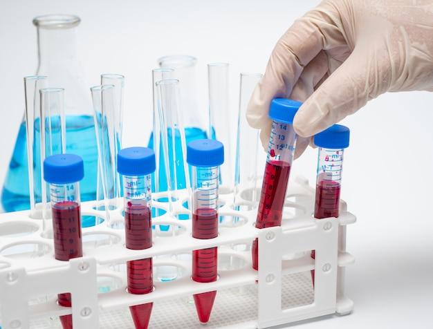 De handen van de onderzoeker die een centrifugaalbuis met rode vloeistof vasthoudt.