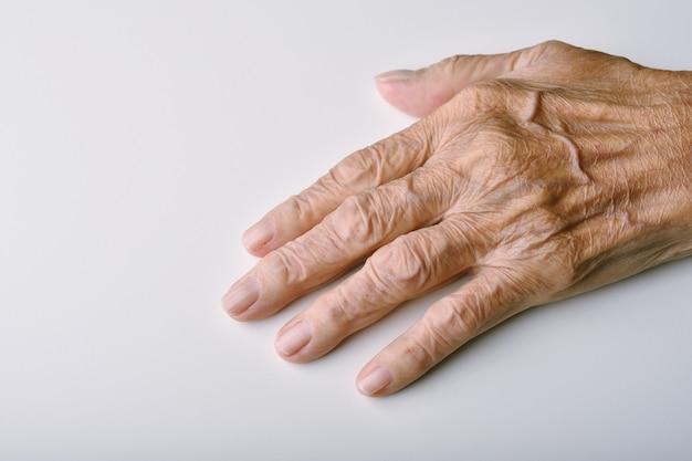 De handen van de oude vrouw vervormen, vingerpijn en stijfheid door artritis.