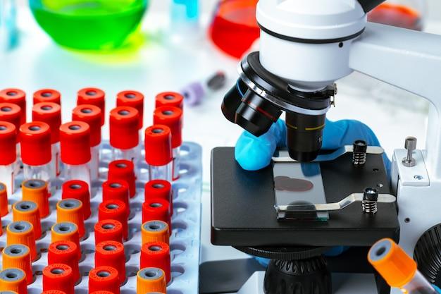 De handen van de wetenschapper die chemisch onderzoek doen met behulp van microscoop