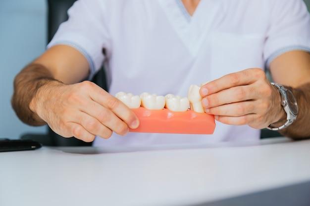 De handen van een tandarts houden een model van tanden met een tandheelkundig implantaat vast