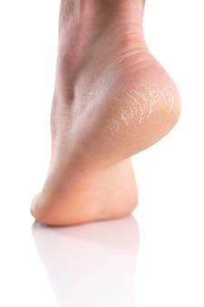 De hiel van de voet met slechte huid is bedekt met scheuren