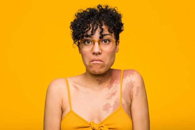 De jonge afrikaanse amerikaanse vrouw met huidgeboorteteken haalt schouders op en verwarde open ogen.