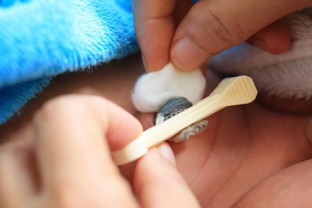 De navelstreng van de baby schoonmaken.