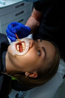De orthodontist zet metalen beugels op de tanden van de patiënt. orthodontische tandheelkundige behandeling. hoge kwaliteit foto