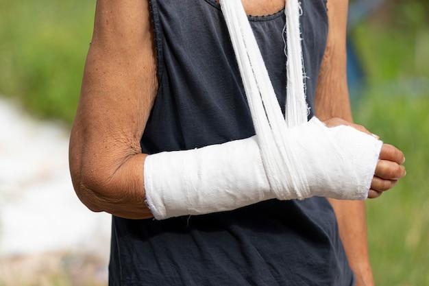 De oude vrouw met gebroken wapen met een slinger, sluit omhoog hand met verband en gips als concept van het lichaamsverwonding.