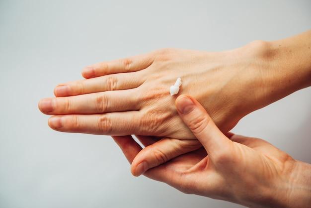 De volwassen handen van de vrouw, voedingscrème aanbrengen. huidverzorging, schoonheidsbehandeling concept. herstel beschadigde droge huid.