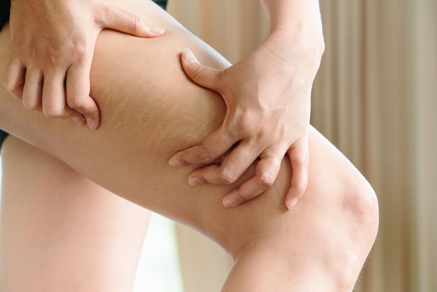 De vrouwelijke hand houdt cellulitis en striae op been